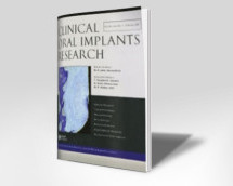 Determination of lingual vascular canals in the interforaminal region before implant surgery to prevent life-threatening bleeding complications